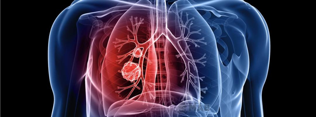 Asbestin Neden Olduğu Ölümcül Hastalıklar Hakkında Detaylı Bilgi. MAB Asbest Söküm ve Bertaraf Hizmetleri.
